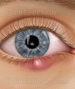 Chalazion eyelid stye, meibomian gland