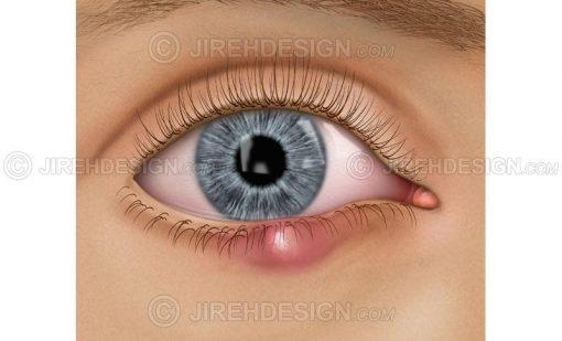 Chalazion eyelid stye, meibomian gland #co0047