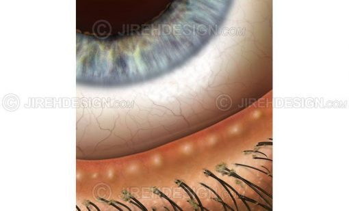Blepharitis – infection and inflammation of the eyelid margins #co0047b