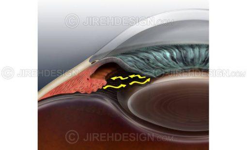 Illustration of closed angle glaucoma co0048