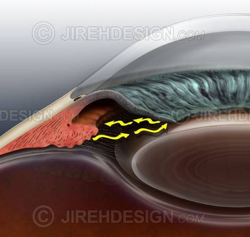 Illustration of closed angle glaucoma co0048