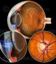 Closed angle glaucoma