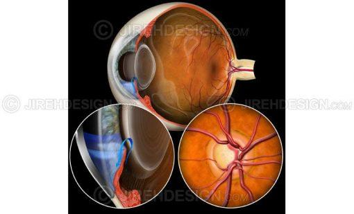 Closed angle glaucoma  #co0048a