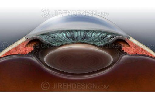 Narrow angle glaucoma #co0049