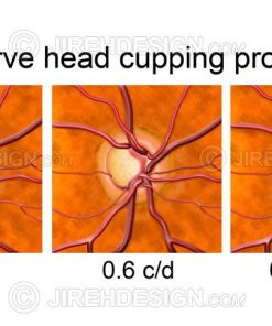 Optic disc cupping progression
