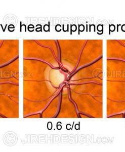 Optic disc cupping progression