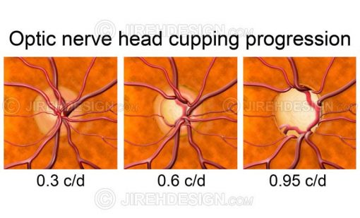 Optic disc cupping progression #co0052