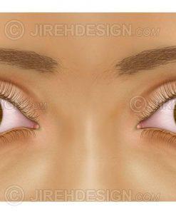 unequal pupil sizes – anisocoria