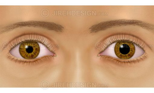 unequal pupil sizes – anisocoria #co0053