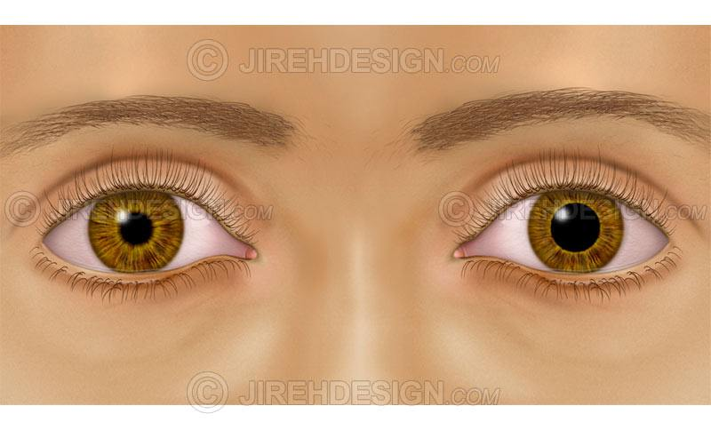 unequal pupil sizes – anisocoria