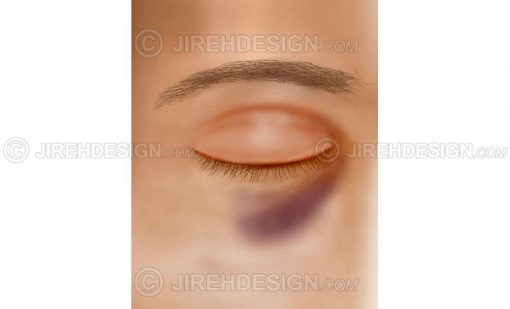 Black eye – contusion #co0056