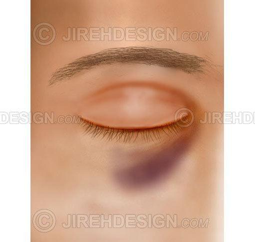 Black eye – contusion #co0056