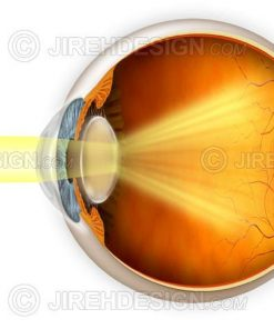 Cataract vision effects