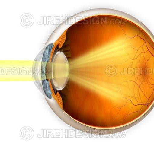 Cataract vision effects #co0057