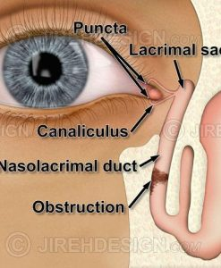 Nasolacrimal duct obstruction
