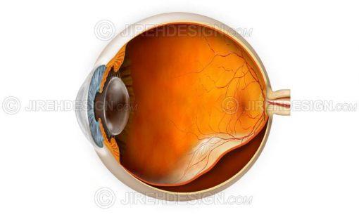 Retinal detachment #co0061