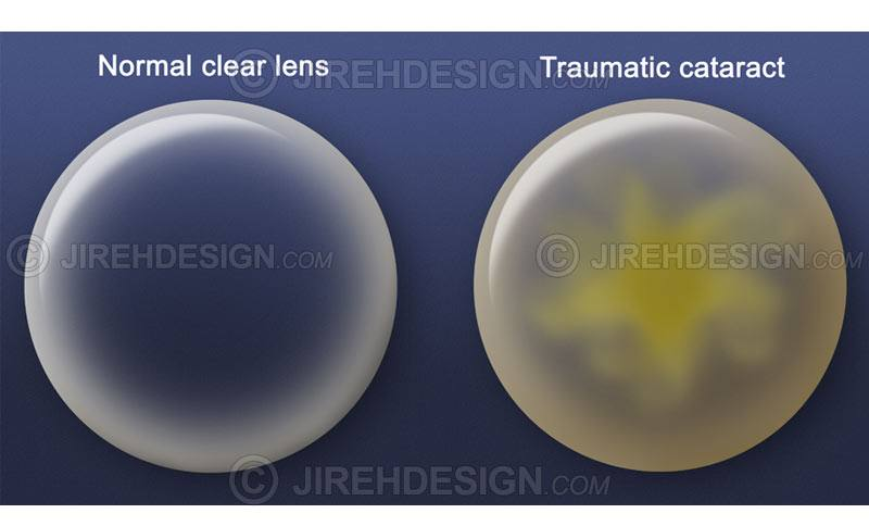 Cataract lens with normal lens