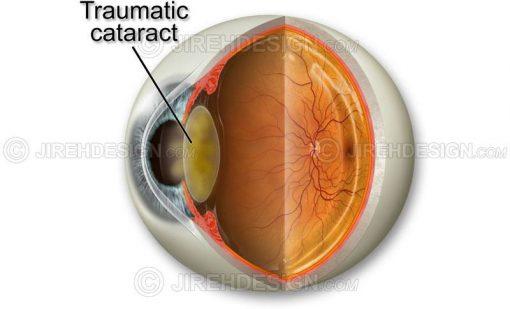 Traumatic cataract #co0066