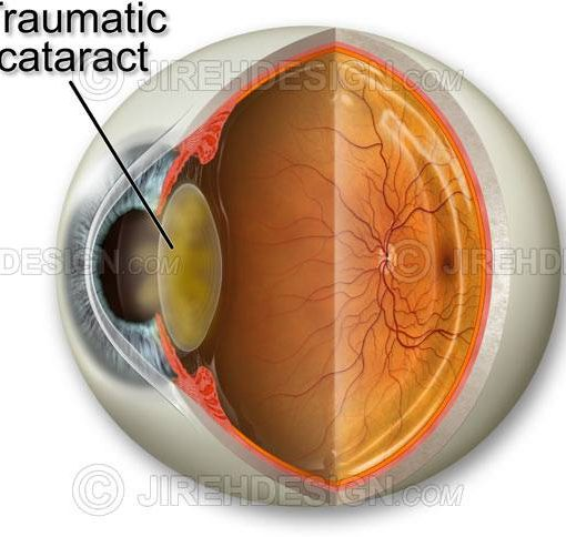 Traumatic cataract #co0066