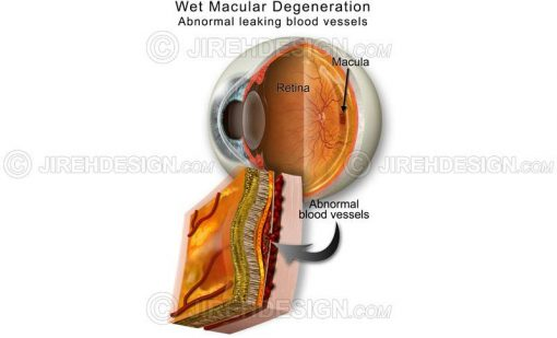 Wet macular degeneration schematic #co0069
