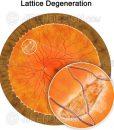 Lattice degeneration in the peripheral retina