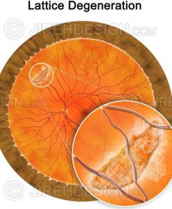 Lattice degeneration in the peripheral retina