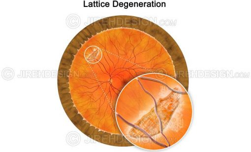Lattice degeneration in the peripheral retina #co0070