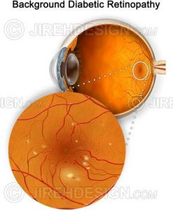 Diabetic retinopathy macula