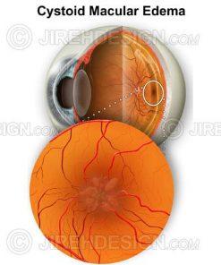 Cystoid macular edema (CME)