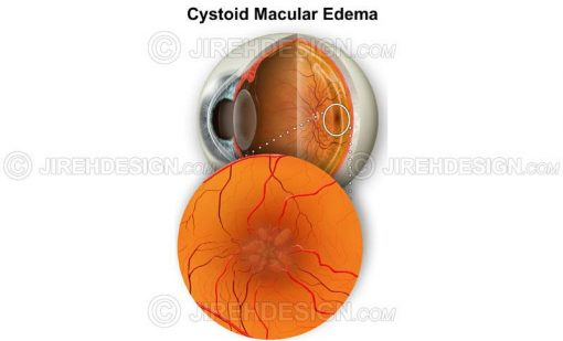 Cystoid macular edema (CME) #co0075