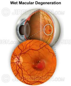 AMD with macular hemorrhage