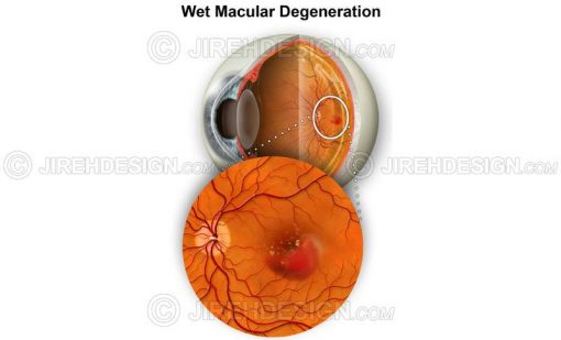 AMD with macular hemorrhage #co0076