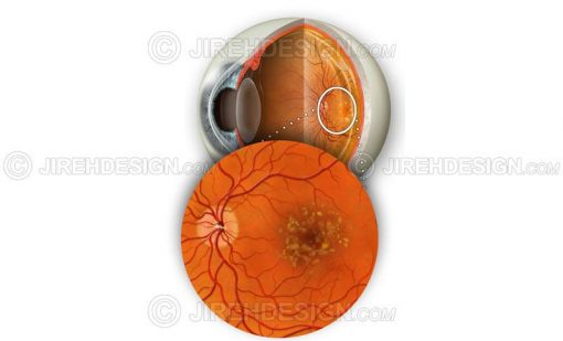 Dry macular degeneration with hard and soft drusen #co0077