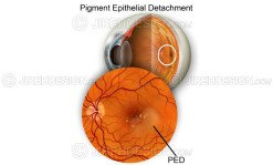 Pigment epithelial detachment