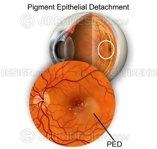 Pigment epithelial detachment #co0078