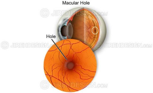 Macular hole illustration #co0080