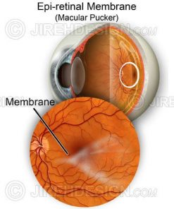 Macular pucker illustration
