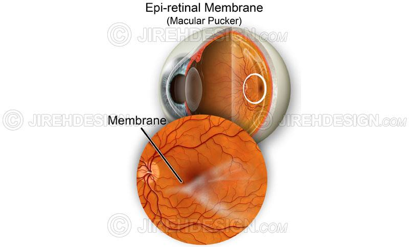 Macular pucker illustration #co0082