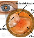 Retinal detachment with tear