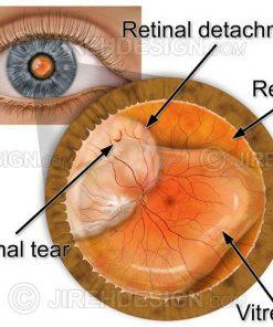 Retinal detachment with tear