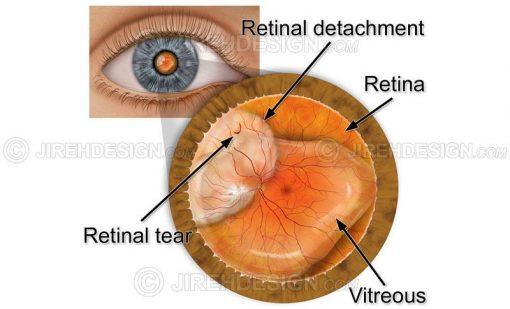 Retinal detachment with tear #co0084