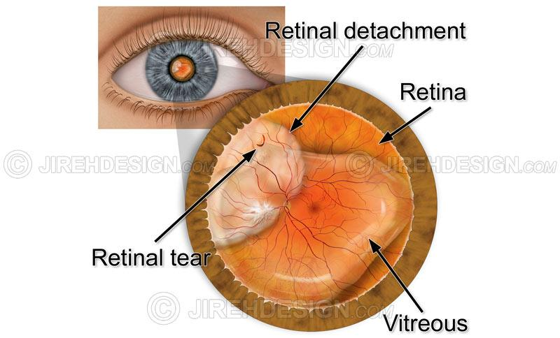 Retinal detachment with tear #co0084