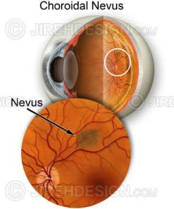 Choroidal nevus illustration