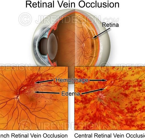 Branch and central retinal vein occlusion #co0087