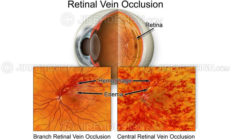 Branch and central retinal vein occlusion