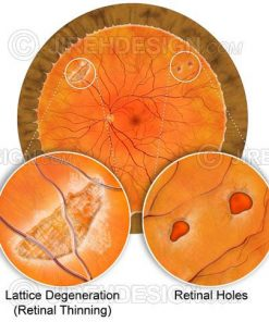 Retinal holes and tears