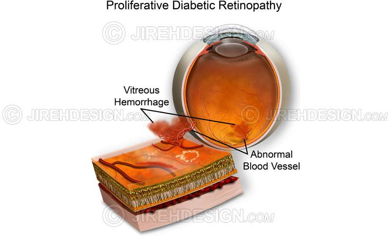 PDR with vitreous hemorrhage #co0093