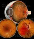 Diabetic retinopathy BDR and PDR