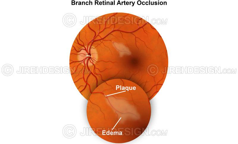 BRAO - branch retinal artery occlusion - #CO0101 | Stock eye images