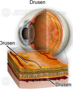 Drusen cross-section